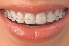 ortodoncia (12)