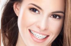 ortodoncia-metalica