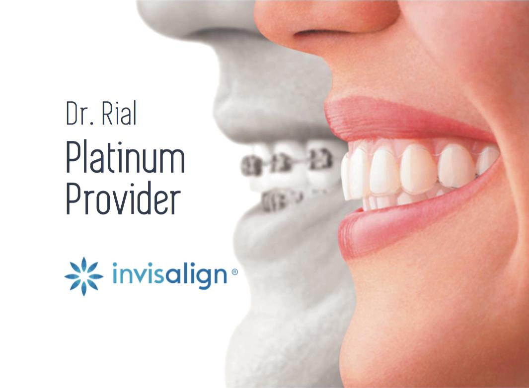 Ortodoncia invisible. Invisalign