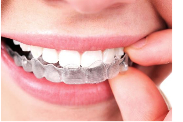 ortodoncia-invisalign-maxdental-madrid