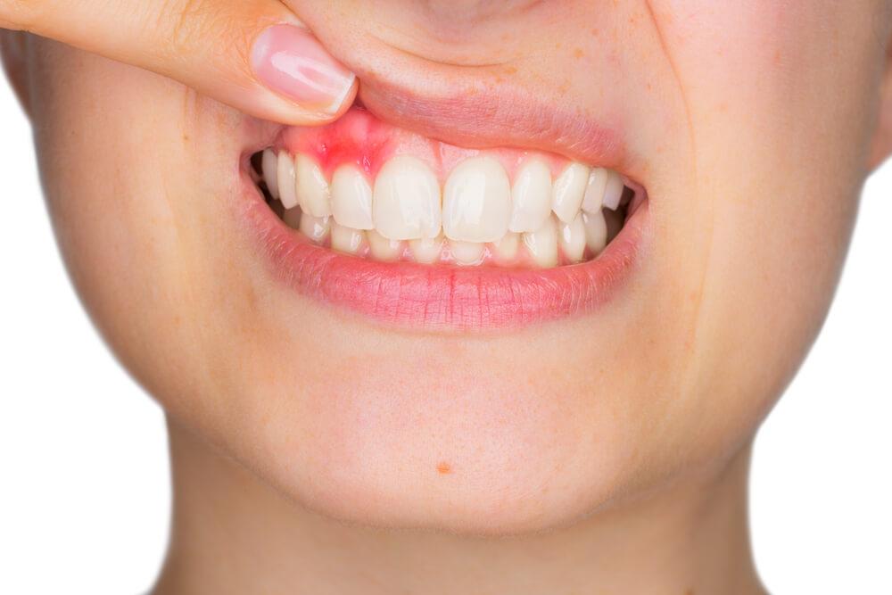 beneficios invisalign encías, gingivitis, invisalign, periodontitis