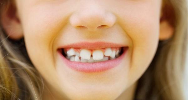 signos ortodoncia invisalign