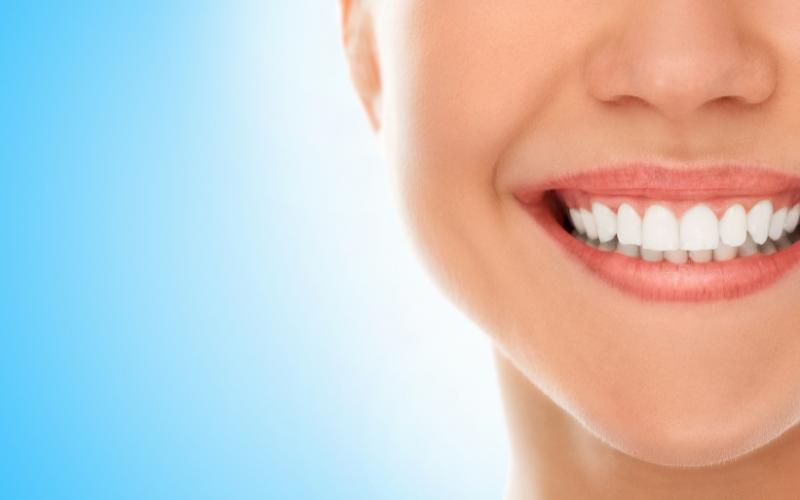 ortodoncia invisible verano